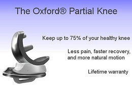 Image of Oxford Partial Knee implant - click for more information